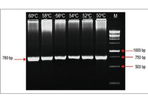 Gel image of polymerase chain reaction optimization for exon 9 at six different temperatures. The expected band was obtained in the range between 50°C and 60°C, with no multiple bands. The annealing temperature can be selected as 60°C (M: 1 kb DNA ladder from Geneaid)