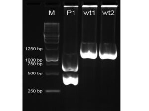 Results of digestion of DNA from a Gaucher disease patient (P1) and two non‑Gaucher disease normal controls (wt1 and wt2) with NciI restriction enzyme. Product length is indicated by the markers (M)