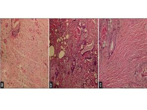 Stromal phenotypes: (a) stroma with myxoid changes regarded as immature; (b) intermediate stroma, keloid‑like collagen fibers were intermixed with mature stroma; (c) mature stroma, fine mature collagen fibers were stratified into multiple layers. Light microscopy, ×10 objective lens; H and E staining