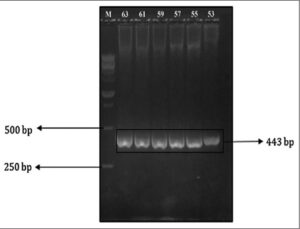 Polymerase chain reaction optimization result for GALNS‑ID Exon 5 primers