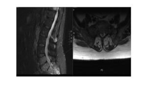 Magnetic resonance imaging T2‑weighted mid‑sagittal and axial images of lumbosacral spine showing sacral metastasis
