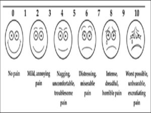 Assessment of pain (visually)