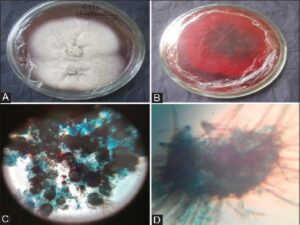Morphology of Chaetomium cupreum on potato dextrose agar medium. A‑dorsal view, B‑ventral view, C‑Perithecia, D‑Perithecia with ascospores by using lactophenol cotton blue stain