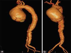 (a) Computed tomography aortogram showing type A dissection of aorta with dilatation in sinus of Valsalva for a length of 36.5 mm and ascending aneurysm. (b) Computed tomography aortogram showing dissection of aorta and ascending aneurysm