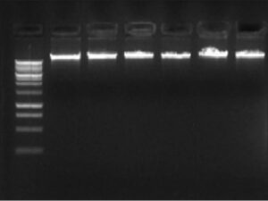 Extraction of DNA samples from the study participants (1% agarose gel)