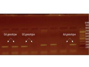 Agarose gel shows polymerase chain reaction product of tumor necrosis factor‑α (−308 G/A) polymorphism in agarose gel electrophoresis (the size of amplified products [184 bp] and different tumor necrosis factor‑α [−308 G/A] genotypes are shown)