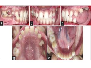 Preoperative intraoral photographs: (a) Right lateral view showing delayed eruption of permanent teeth and retained primary teeth. (b) Frontal view showing midline shifted toward the left side and canting of occlusal plane. (c) Left lateral view shows unerupted teeth distal to maxillary first premolar and retained mandibular canine, also partially erupted permanent first maxillary molar. (d) Maxillary occlusal view showing partially erupted first premolar on the right side and distally angulated first premolar. Also partially impacted permanent first maxillary molar. (e) Mandibular occlusal view showing retained primary canines and right mandibular molar and depressed alveolar ridge distal to the left primary canine