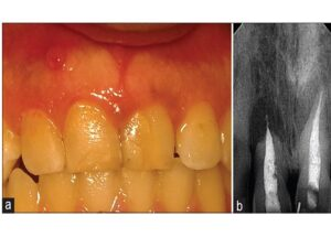 (a) clinical photograph showing sinus opening on the labial gingiva in relation to tooth #11 (Maxillary right central incisor). (b) Preoperative radiograph showing radiolucency involving root apex of tooth # 11, with apical root resorption and extruding gutta‑percha. (Column width)