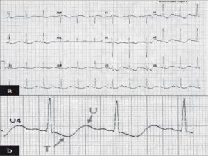 (a) ECG at the time of presentation, At the time of presentation when serum potassium is 1.82 mmol.l,