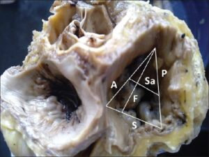 Tricuspid valve in a young individual which is triangular and showing attachment lengths of the leaflets and the frontal and sagittal dimensions