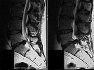 Sagittal view of MRI lumbar spine showing disc herniation at L5/S1 level