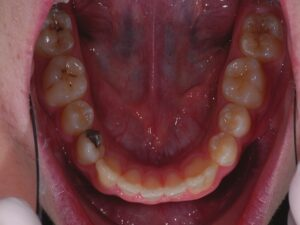 Complete fusion of right mandibular lateral incisor and canine