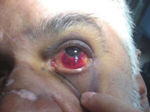 This image shows peri-orbital ecchymosis and subconjunctival hemorrhage