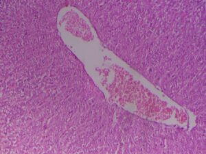 Photomicrograph of liver showing marked dilation and congestion of central vein (Group 2, day 14): H and E ×100