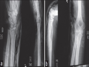 (a and b) Radiographs after closed reduction of elbow joint and distal radius fracture