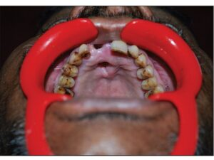 Intra oral photograph showing perforation of the palate