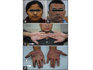 Two patients showing left and right mandibular enlargement of craniofacial dysplasia (c and d) Raynaud's phenomenon in 1st patient during different phases showing acrocyanosis (arrows)