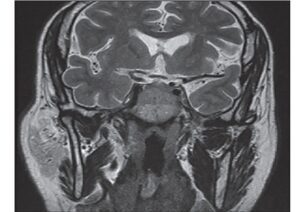 Magnetic resonance imaging pitutary coronal T2-weighted sequence demonstrating an iso-intense mass of the clivus displacing the normal pituitary gland cephalad