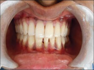 """Clinical intraoral view showing a """"macrodont"""": A fused right mandibular central and lateral incisor"""