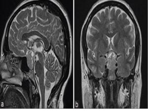 A 41‑year‑old female with vision loss. Sagittal T2‑weighted (a) and coronal T2‑weighted (b) images reveal a hyperintense mass in sellar