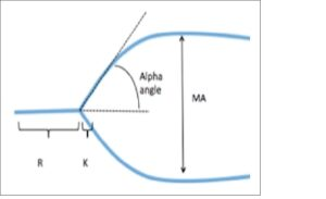 A thromboelastogram with R, K, α angle, and MA parameters illustrated