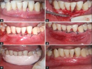 (a) Preoperative after Phase I therapy, (b) intraoperative flap debridement, (c) after suture placement, (d) vestibular deepening done with diode laser, (e) periodontal pack placed, (f) postoperative 6‑month follow‑up