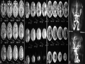 Magnetic resonance imaging brain T2 fluid-attenuated inversion recovery (a) showing cortical ribbon sign along the border zone between anterior cerebral artery/middle cerebral artery and middle cerebral artery/ posterior cerebral artery territory with diffusion-weighted imagines