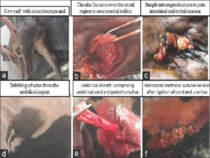 Surgical correction of atresia ani et recti (a‑c) and patent urachus (d‑f)