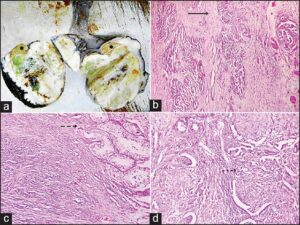 Orchiectomy specimen showing a solid whitish mass with focal cystic and hemorrhagic areas and residual normal testicular tissue in upper pole