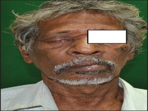 Patient showing ptosis and drooping of the corner of mouth
