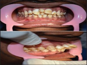Intraoral photograph-frontal and lateral view — proclination and rotation of central incisors due to double mesiodentes (column width)