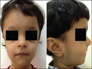 A 17-month-old girl presented with below average height and weight gain, subsequently diagnosed as having cleidocranial dysplasia