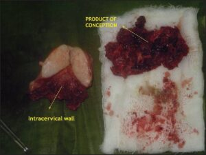 Cut section of uterus showing product of conception adherent to cervical wall