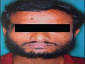 Patient with cutaneous neurofibroma