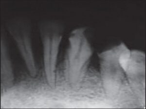 Preoperative intraoral periapical radiograph of the right mandibular lateral incisor showing two roots with two root canals with bifurcation at the middle third of the root