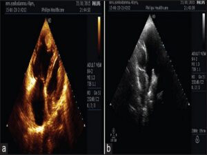 Two-dimensional echo apical four chamber view shows clot in right ventricular apex