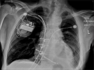 Chest X-ray revealed a left side pleural effusion