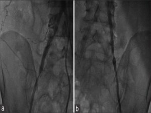 Figure 1: Peripheral angiogram shows right common iliac artery stenosis of 90% at proximal and distal edges of the stent