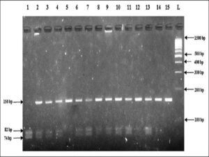 Electrophoretic pattern of RsaI digested polymerase chain reaction product of representative samples on 3% agarose