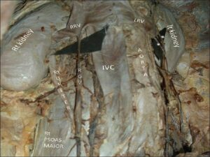 Two left gonadal veins (*) draining in left renal vein and right gonadal vein anomalously terminating in right renal vein, IVC = inferior vena cava